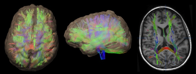 Shown above: Diffusion tensor imaging (DTI), one of the techniques that will be used in this backer reward, reveals the elegant architecture of the brain's nerve fibers, along which information is transmitted through the brain.