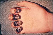 gangrene nails, symptom of bubonic plague