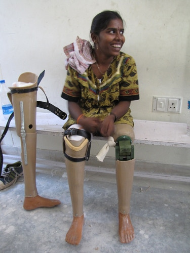 Sandhya with her new legs