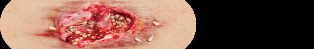 4. Decubitus ulcer with maggot infestation