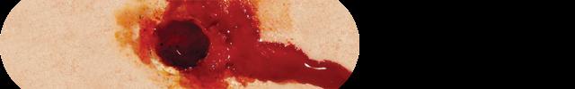 5. Small caliber gunshot