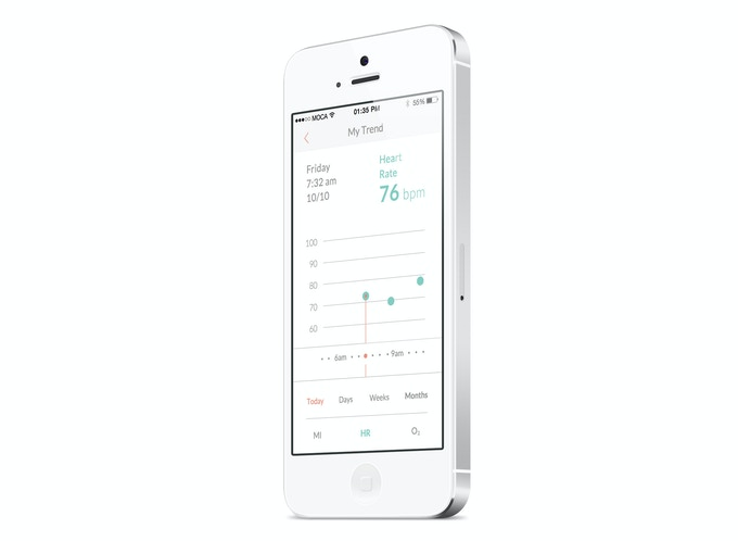 MOCA heart: A Heart Scanner at your Fingertips by MOCACARE