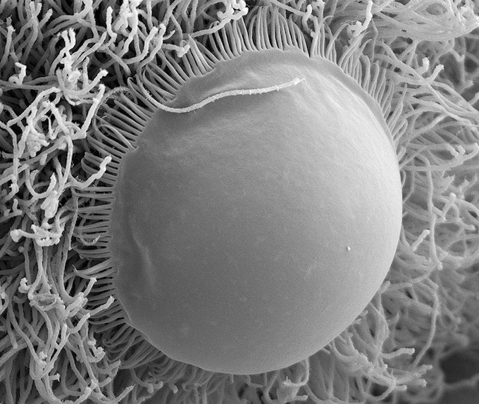 Operculum and flagella of the protist Trichonympha sp..  One of the digestive symbionts of dampwood termites. Electron microscope photo by Kevin J. Carpenter, kevinjcarpenter.com