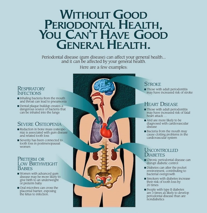 Reproduced from http://www.sharonalbrightdds.com/assets/perio-poster.jpg