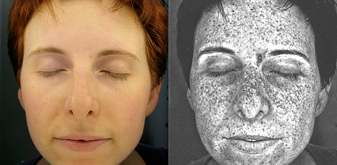 A 35-year-old melanoma survivor's skin under normal light and UV light.