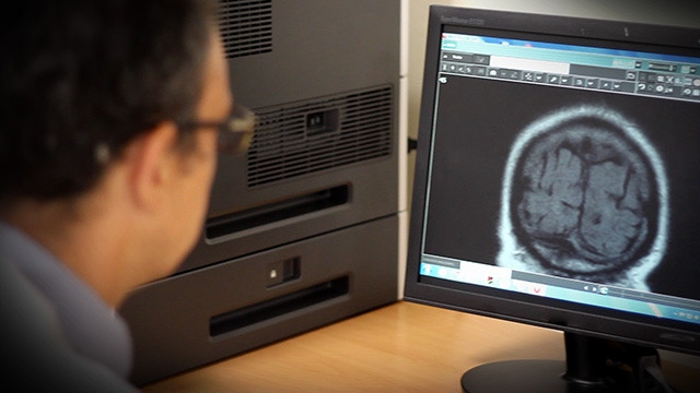 MRI analysis