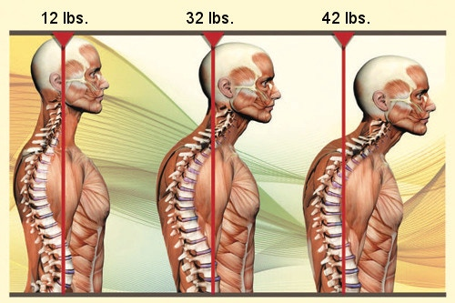Studies show that for every 15 degrees of forward neck tilt, as much as 10-20 lbs. of increased weight is added onto your spine, back, and neck! (Image via Dr. Erik Dalton, PhD)