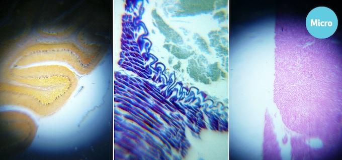 cerebellum / trachea / liver