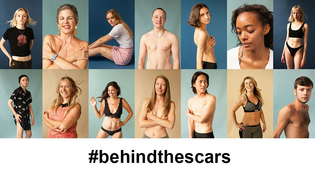 Behind The Scars in NYC! project video thumbnail
