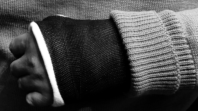 Only the finest knit wool can stretch over a cast without consequence