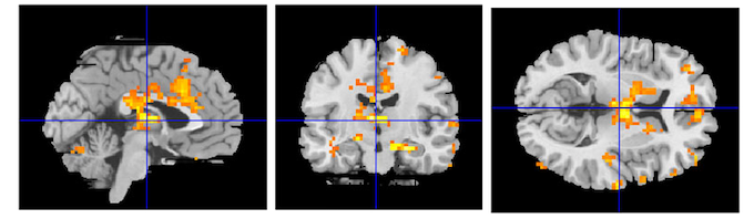 Your Brain on Binaural Beats (Images Obtained from fMRI)