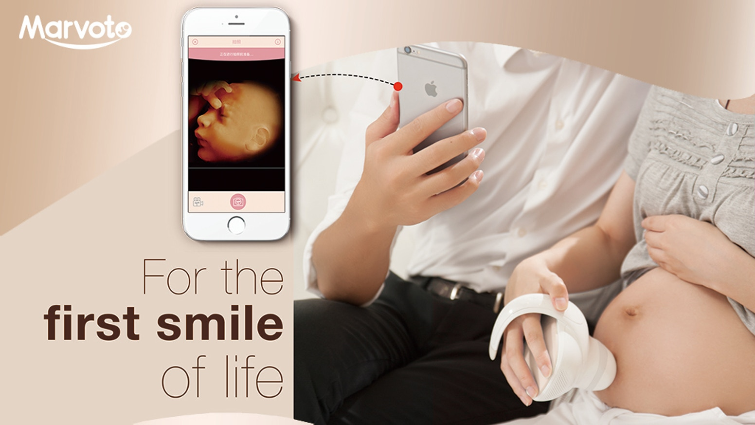Marvoto Fetus Camera M1 is a product uses ultrasound Technology. Mom-to-be can use it to take pictures and videos for fetus at home!