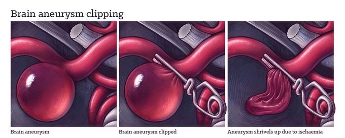Brain aneurysm clipping