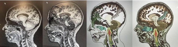 Evolution of my brain MRI to the 'Something Wild' album art.  Artwork by Stephanie Renner.