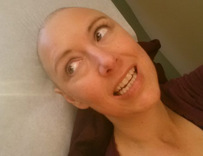 Bald with gritted teeth - must be chemo time!
