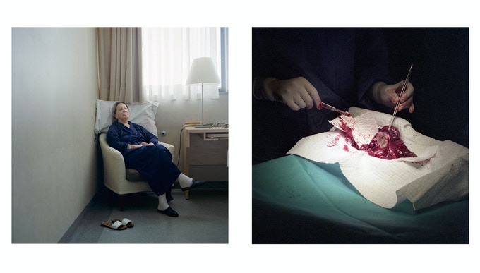 Left: Milan, Italy. Pacifici Serenella, 71, in the surgery ward of the European Institute of Oncology, waiting to be operated for a lung cancer; right: Surgeon Giulia Veronesi dissecting a lung cancer.