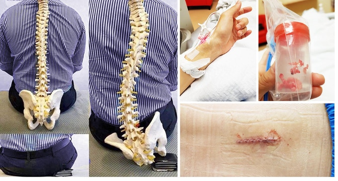 Actual pictures of my removed spinal disc and ops site.  Yup,  fxxxking bad experience..