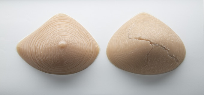 Silicone gel prostheses. After 2-3 years of wear they will split.