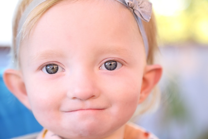 Lily (Ambassador for Wolf-Hirschhorn syndrome)