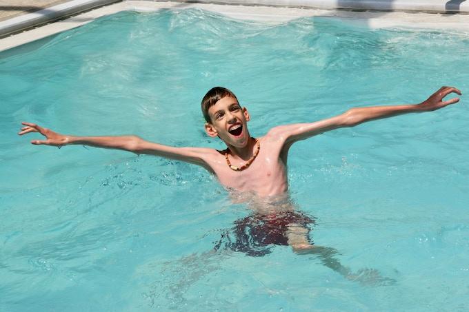 Billy (Ambassador for Marfan syndrome)