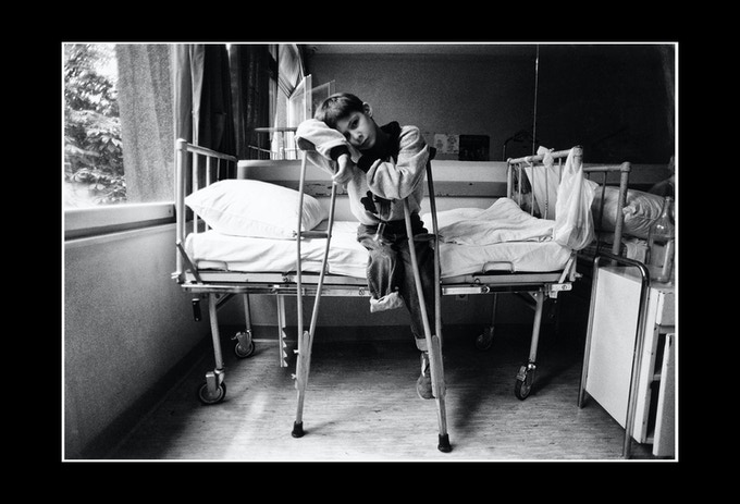 A landmine victim in hospital, Bosnia