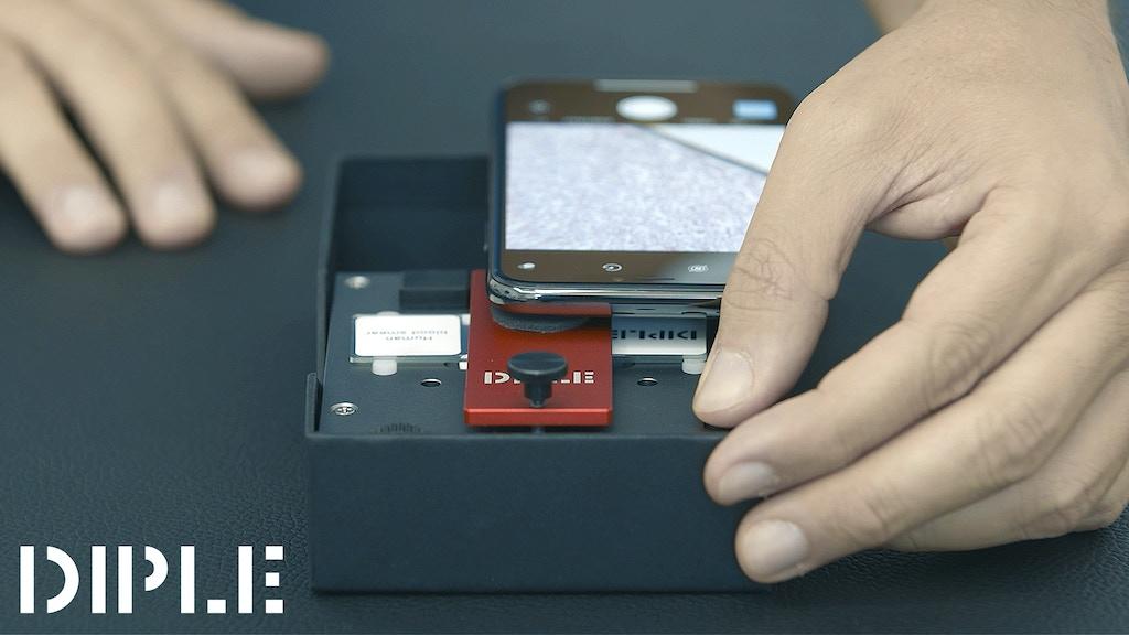 最大1000倍に拡大できる事で自分の赤血球も見る事ができるスマートフォン顕微鏡アダプタ「DIPLE」