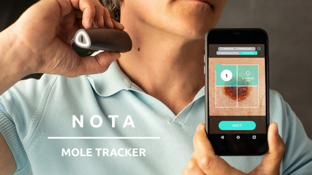 NOTA Mole Tracker – Take Charge of Your Skin At Home project video thumbnail